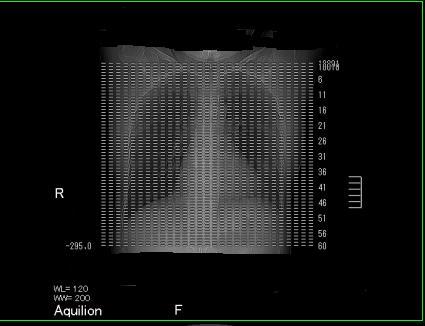 胸部CT画像
