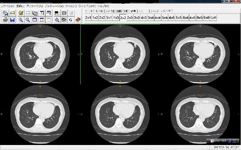 胸部CT画像2