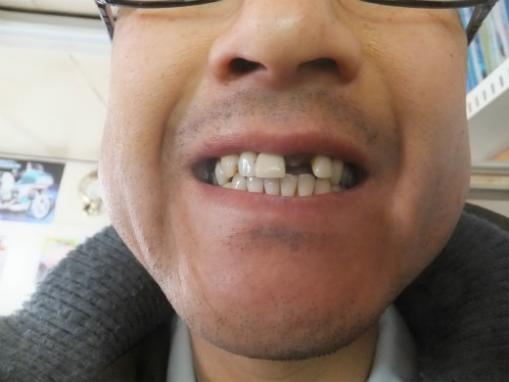 差し歯ポロリ