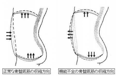 骨盤底筋の機能不全