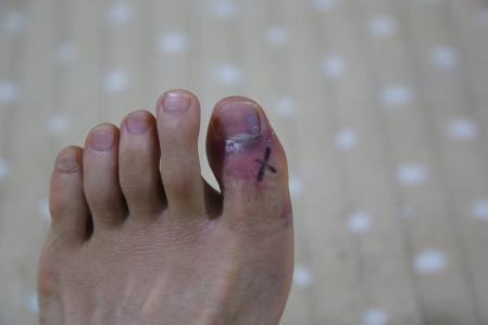 親指骨折の巻 その2