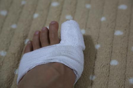 親指骨折の巻 その1