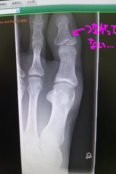 左足親指骨折治癒状態 2013年2月16日