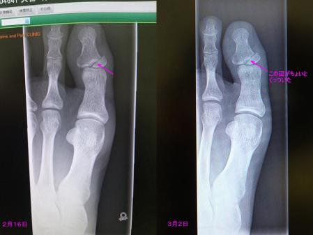 左足親指の骨折の経過