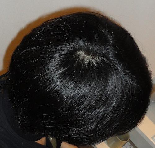20100404のつむじ