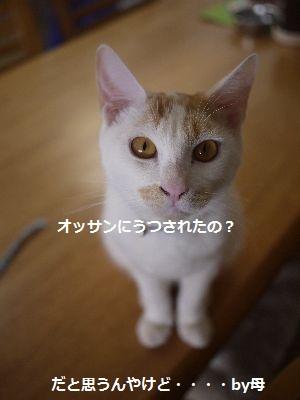 ゆび3 (1)