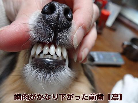歯肉がかなり下がった前歯【凛】