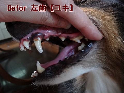Befor 左歯【ユキ】