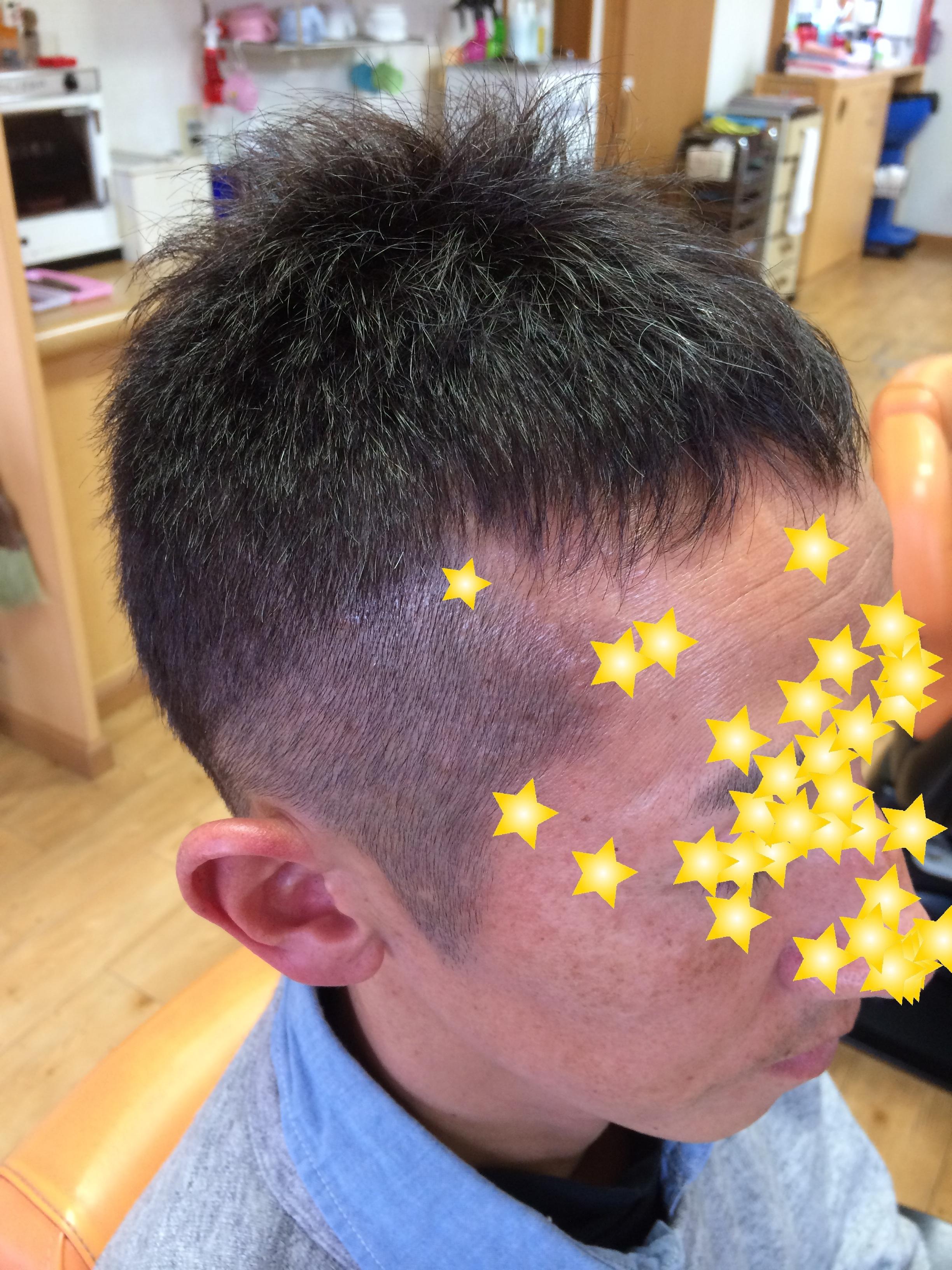 アフター 欧米人風ハーブカラー  男性ショートヘア 白髪10% 2
