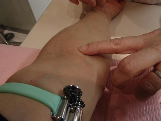 内科採血 (3)