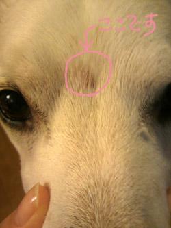 眉間の傷2