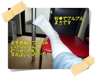 痛々しい足です