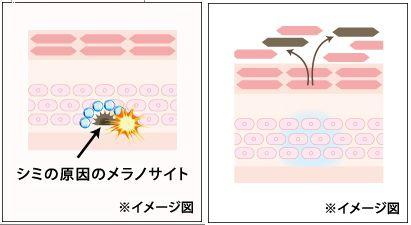 ホワイトラッシュ口コミ~メラニン色素を古い角質ごと根こそぎ強力シミ消しクリーム