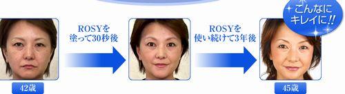 ROSY口コミ~リフトアップマッサージ・たるみ・しわを自宅でエステケア