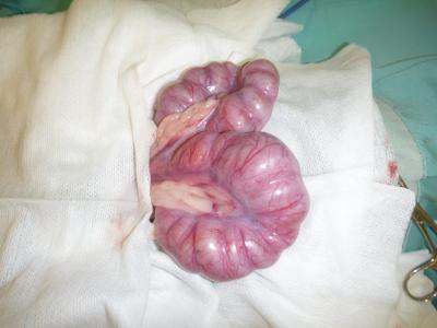 子宮蓄膿症 術中1