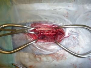 椎間板ヘルニア 術中 2 クリ