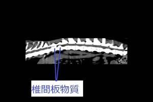 椎間板ヘルニア CT 長軸断面