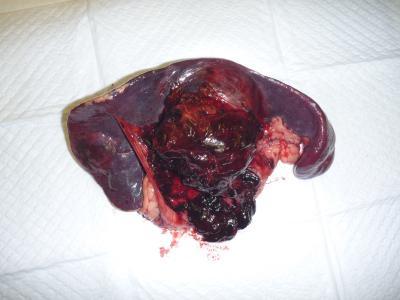 血管腫 術後1