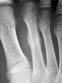 疲労骨折X線画像