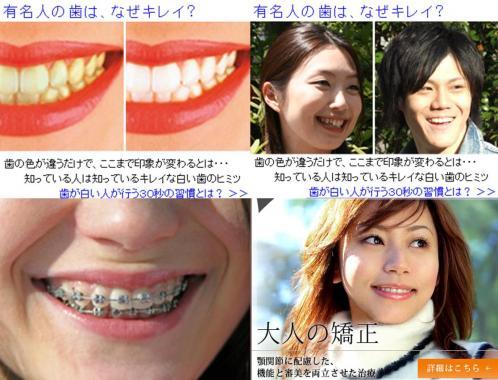 有名人の歯は なぜキレイなのかって歯磨きだが歯並びに関しては大人の歯科矯正が流行ってるらしい