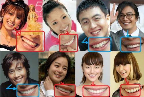 歯が命の芸能人タレントでアッキーナとイ・ビョンホンとペ・ヨンジュンと上戸彩と牧瀬理穂に木村カエラです