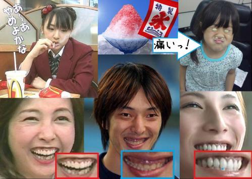 歯周病の元モーニング娘の加護ちゃんだかに麻木久仁子にプロ野球選手の誰々に加藤あいの歯周病写真です