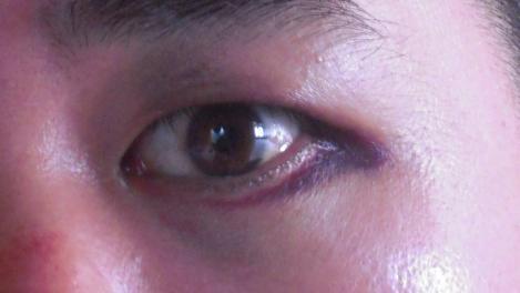 嫁にチョーパン 頭突きをされ左目周りにアザが出来た自分の瞳の写真