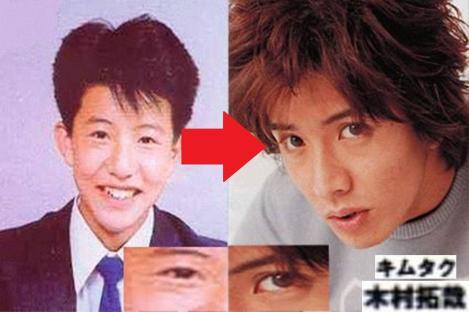 木村拓哉ことキムタクの美容整形証拠写真