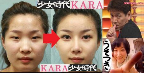KARAも少女時代のメンバーも美容整形で写真の様に綺麗にしているのではないかの疑惑証拠写真がコレだ