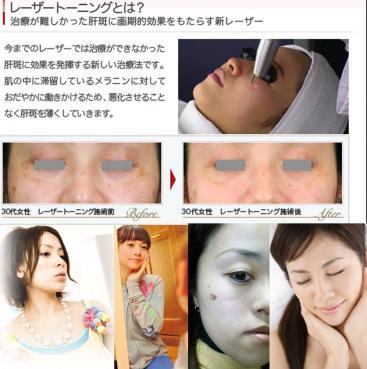 レーザー治療トレーニングで顔のシミを取る写真画像