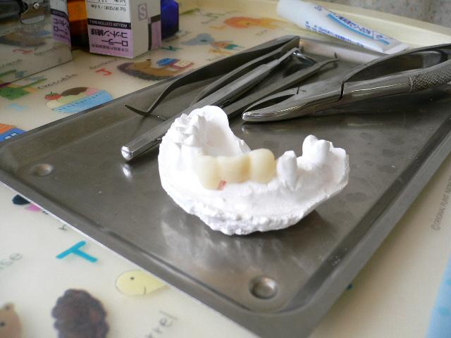 これがホントの「歯型」でございます。