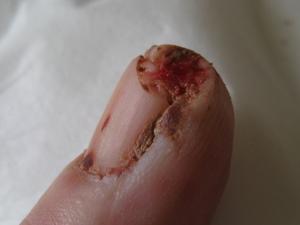 ひだり手中指。