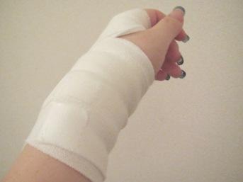 手首負傷20110618