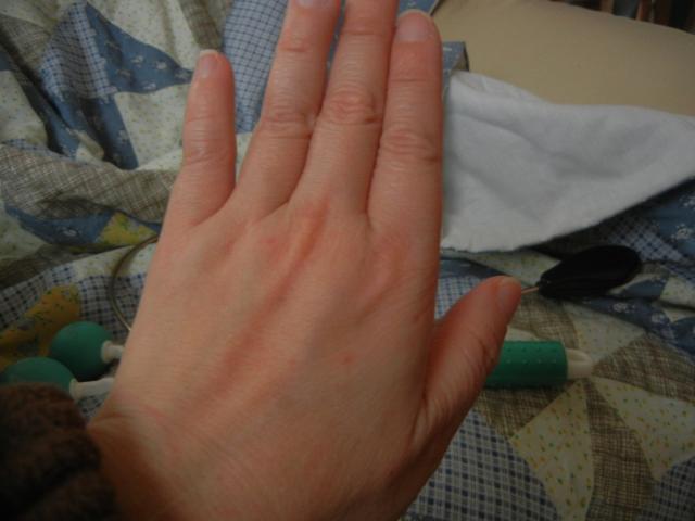 傷だらけの左手