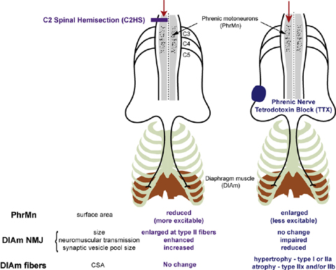 リハビリテーション・理学療法・運動の科学 脊髄半切(C2)と ...
