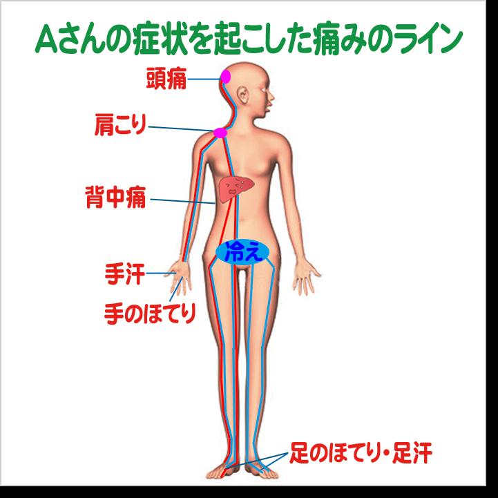 s_asan-line1.png